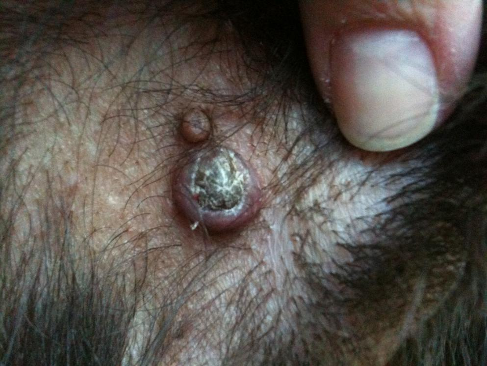 Abcess on penis